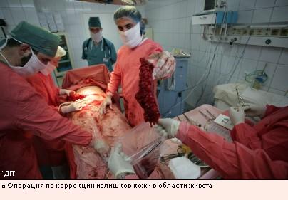Операция по коррекции излишков кожи в области живота